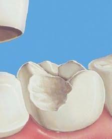 толкование сна зубы