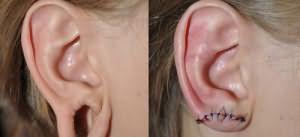 поврежденное ухо во сне