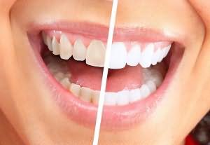Сон поломанные зубы и дырка в губе