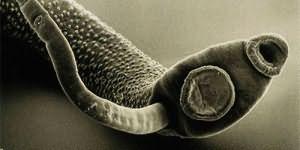 Сонник к чему снятся белые черви