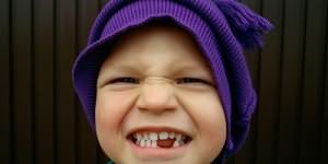 Сонник выпал молочный зуб